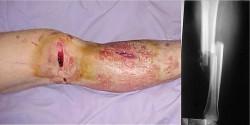 Type II open fracture - 1