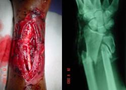 Type IIIB open fracture - 1