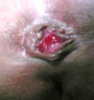 Thrombosed Hemorrhoid