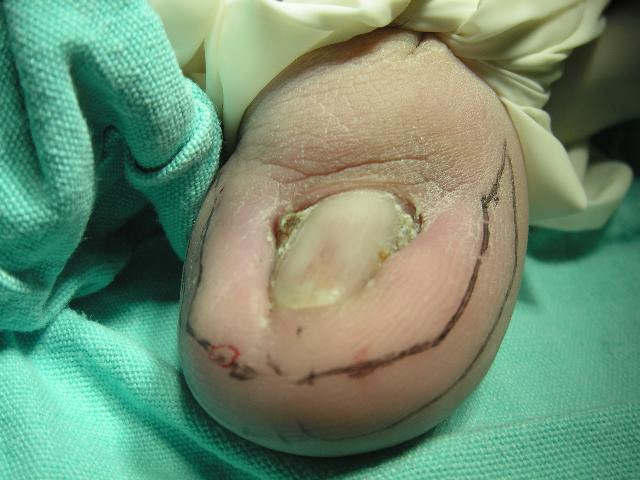 Surgical treatment for ingrowing toenail – Unbounded Medicine