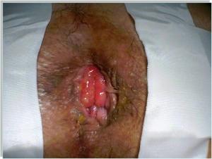 hemorrhoidal prolapse